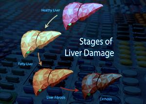 MCTs Disrupt Liver Detox